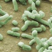 چهت استفاده از خدمات استخراج DNA از باکتری با شرکت تماس حاصل نمایید